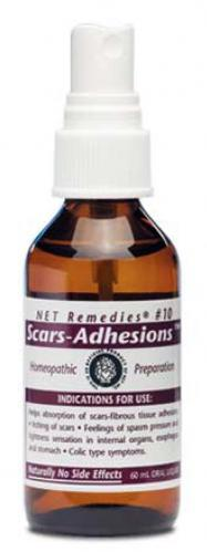 NET-Remedies_10-SCARS-ADHESIONS